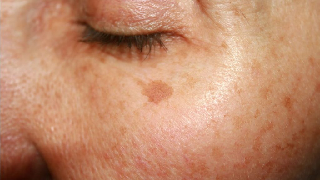 manchas de la piel léntigos solares. Los ingredientes que tu piel necesita para combatir las manchas tras el verano