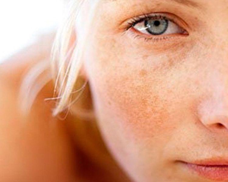 manchas solares melasma. Los ingredientes que tu piel necesita para combatir las manchas tras el verano