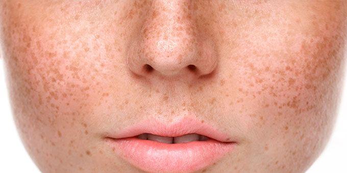 los ingredientes que tu piel necesita para combatir las manchas tras el verano